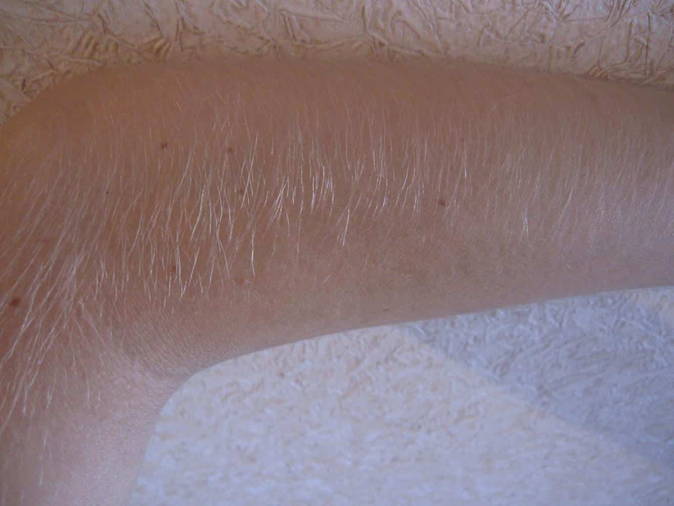 Стадии роста волос после шугаринга