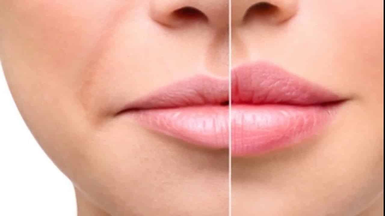 Зрительного увеличения губ