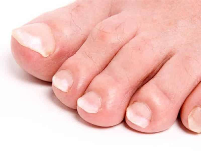 белые ногти на ногах