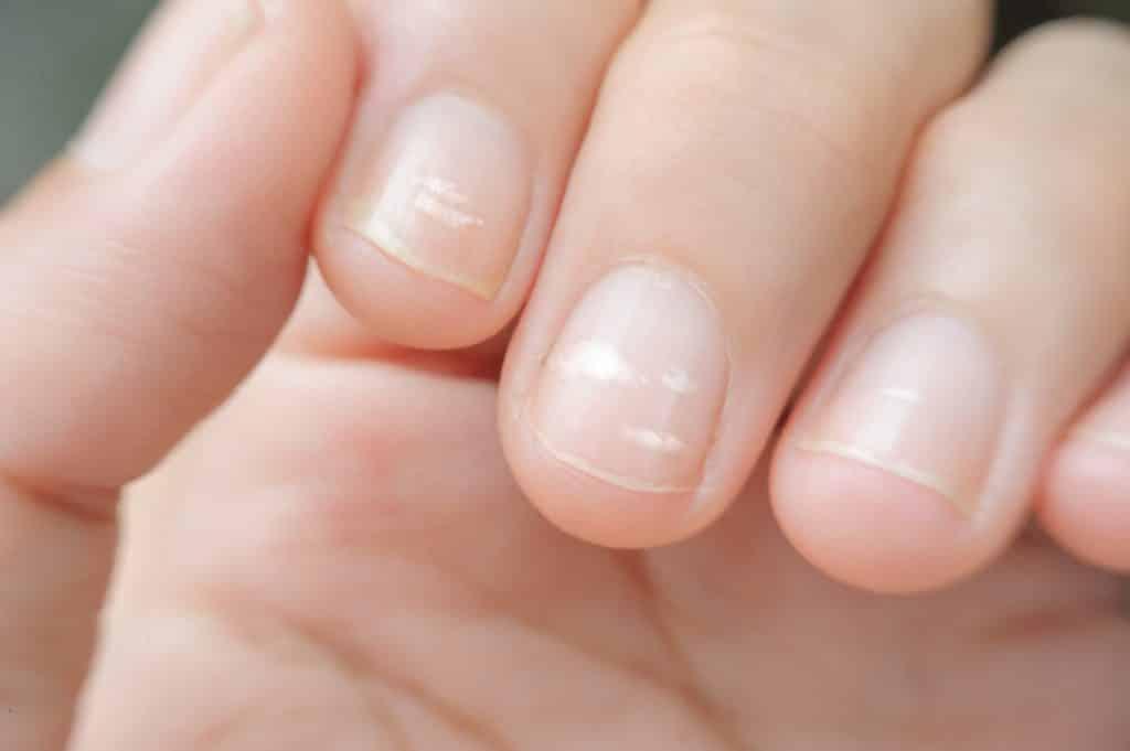 Белый цвет ногтей на руках