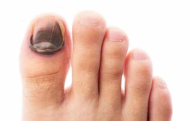 почему чернеют ногти на ногах