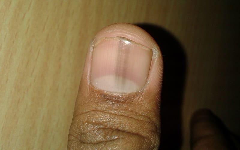 черные полоски на ногтях