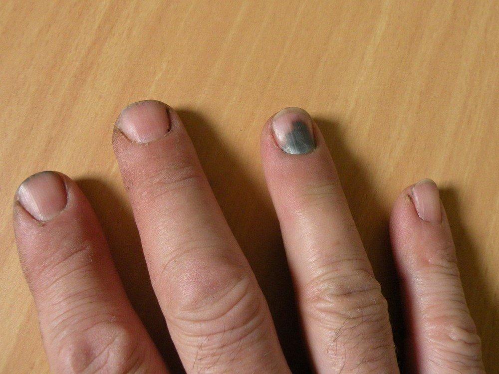 почему чернеют ногти на руках