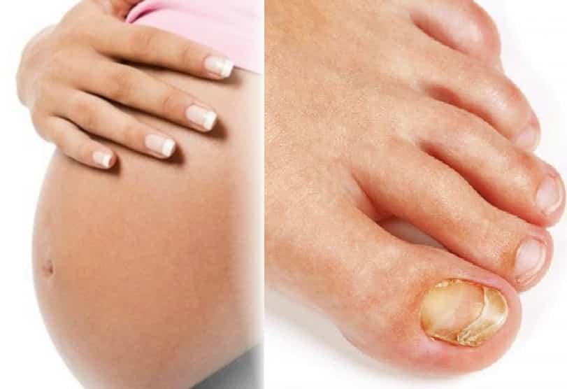 лечение грибка при беременности
