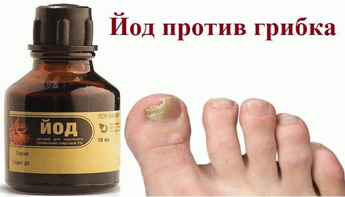 йод от грибка ногтей