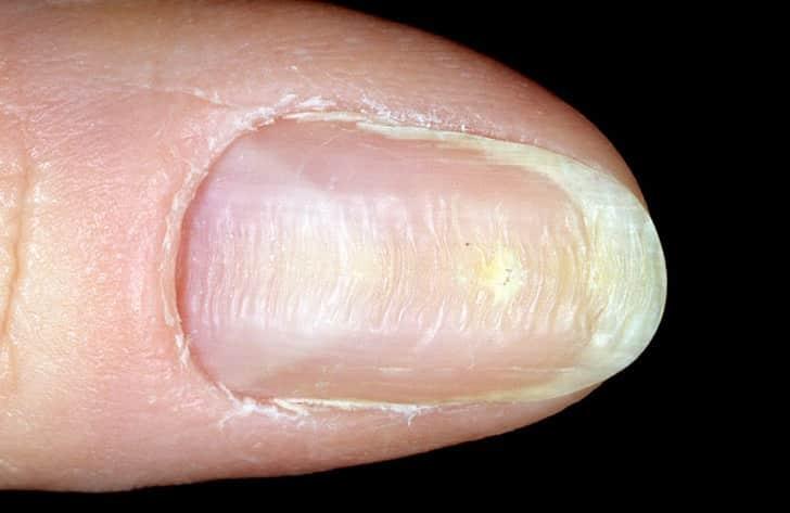 искривление ногтей