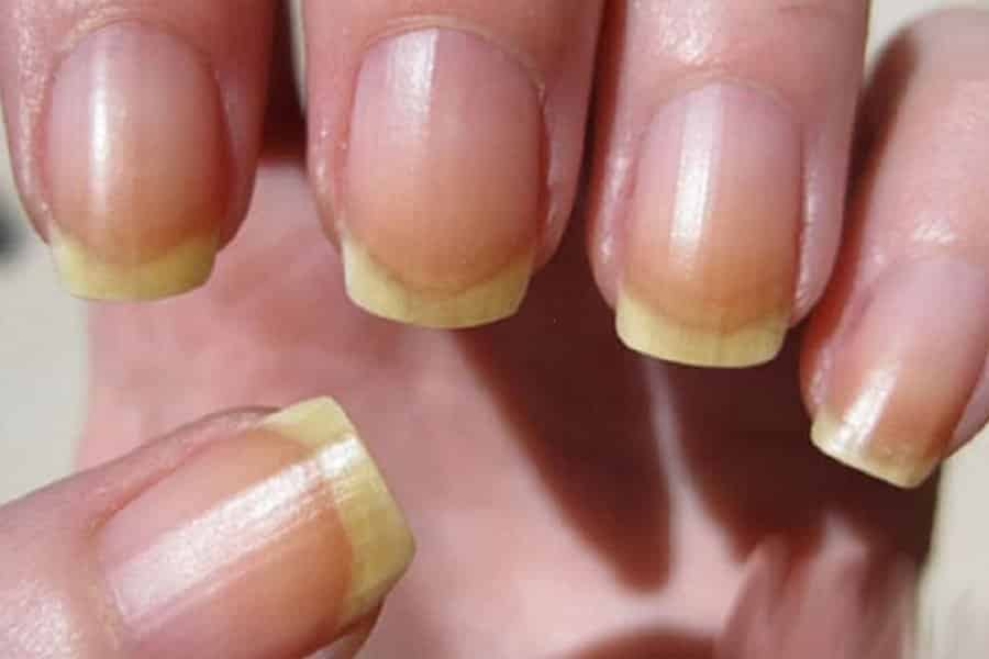 почему ногти желтеют