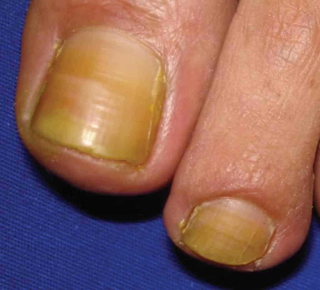 желтые ногти на ногах