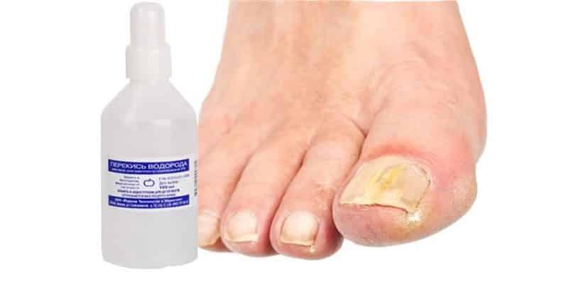 лечение грибка ногтей перекисью