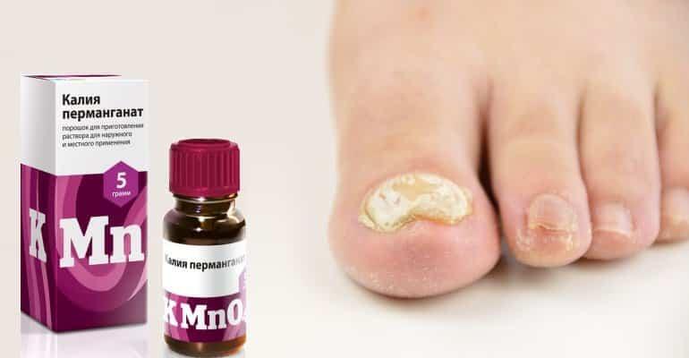 марганцовка от грибка ногтей