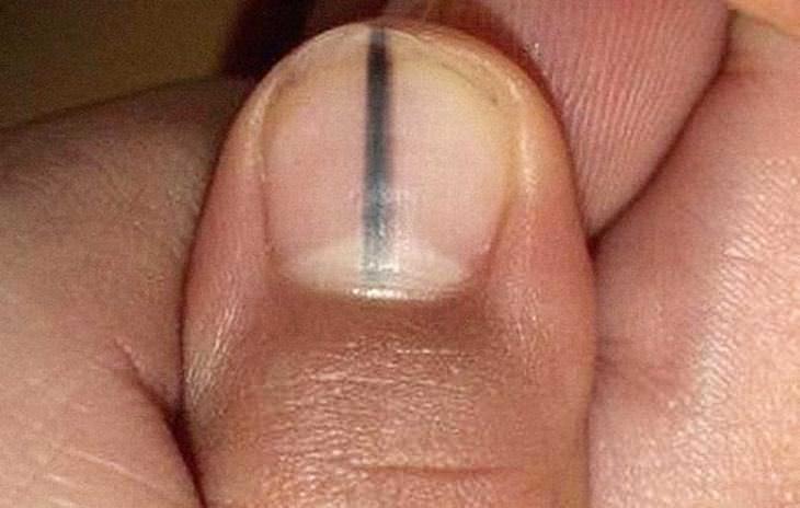 меланома ногтя