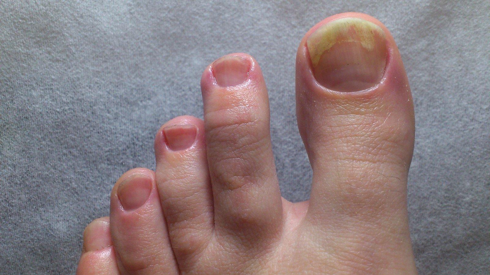 слоятся ногти на ногах