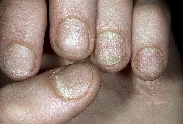 ониходистрофия ногтей