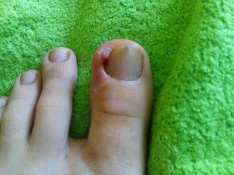Панариций на пальце ноги