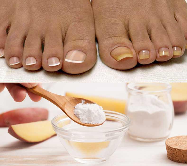 сода от грибка ногтей