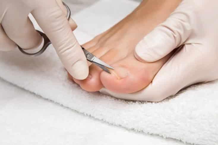 почему нельзя стричь грибковые ногти