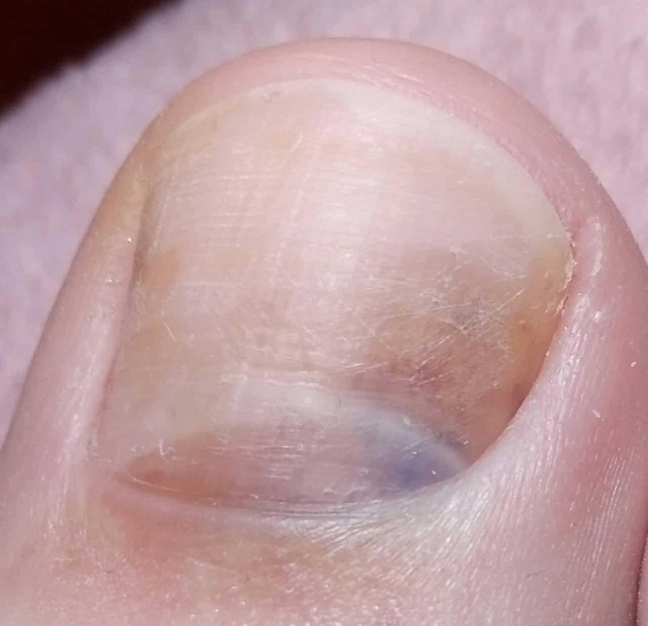темные пятна на ногтях