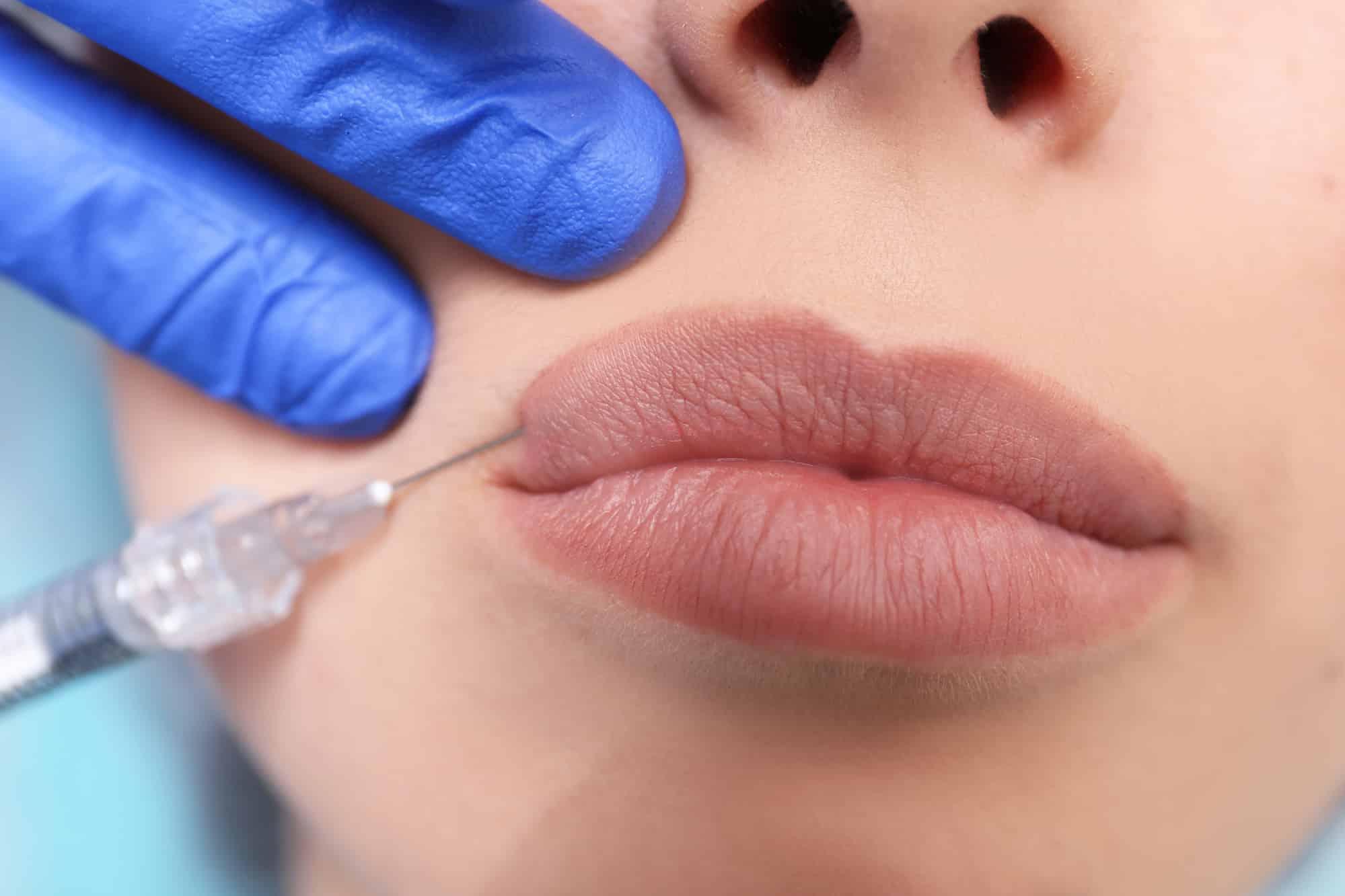 Увеличения губ с помощью гиалуроновой кислоты