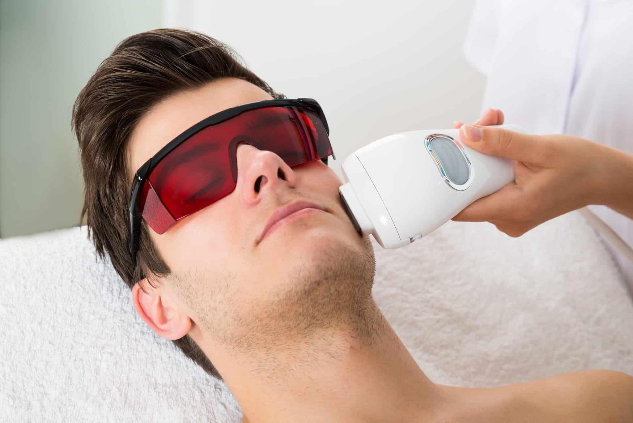 лазерная эпиляция усов у мужчин