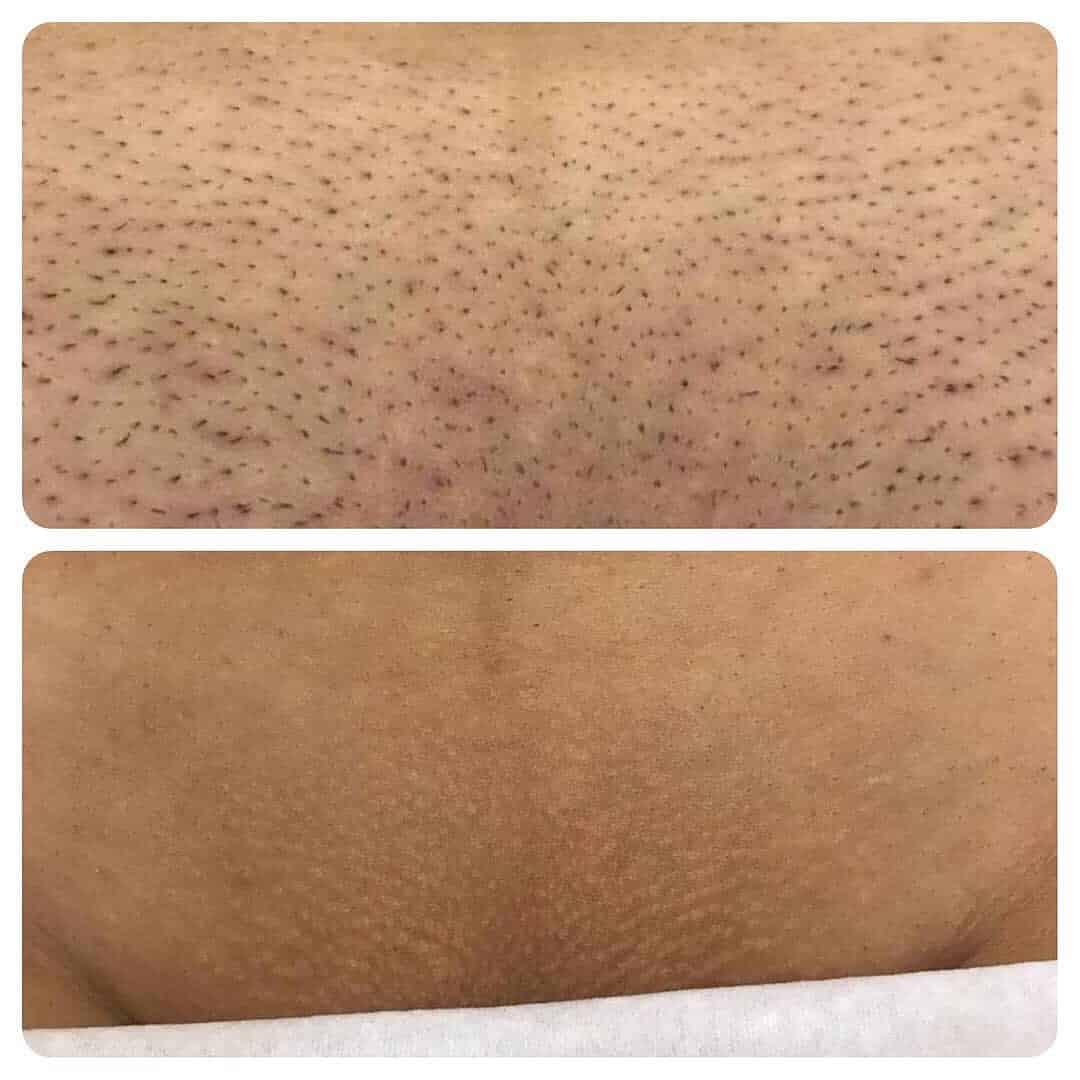 длину волос для лазерной эпиляции