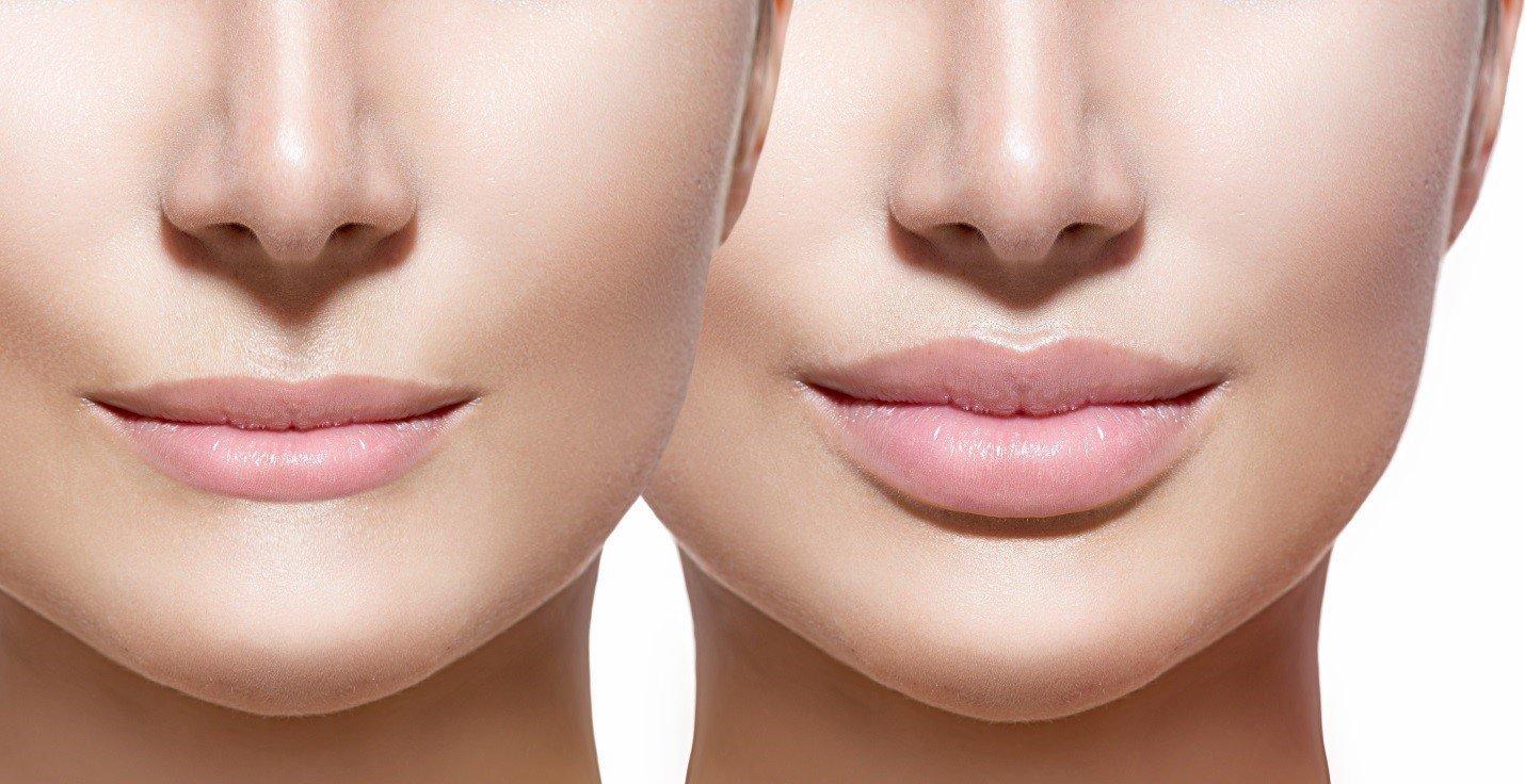 Контурная пластика губ гиалуроновой кислотой