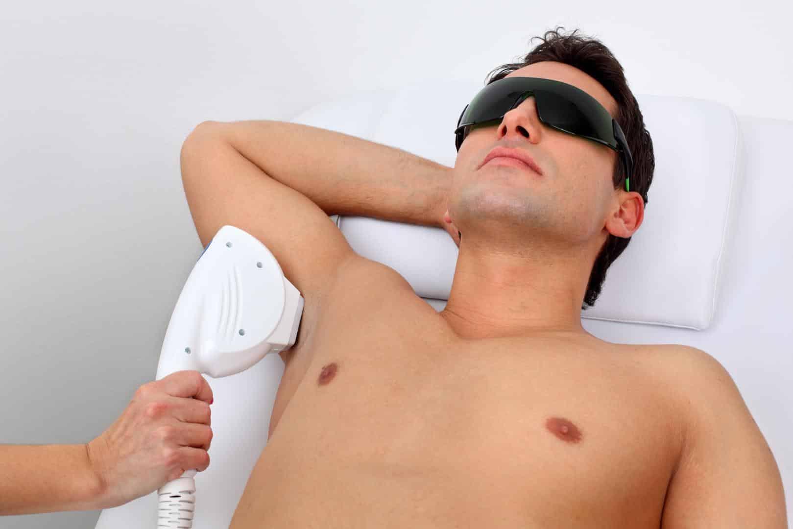 Мужская лазерная эпиляция
