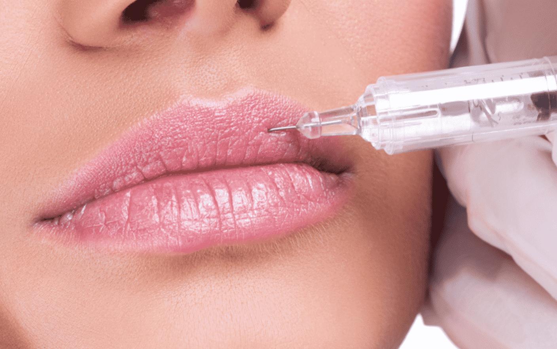 Увеличение губ ботоксом отзывы
