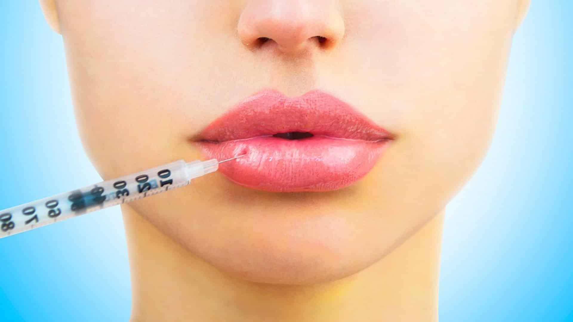 Увеличение губ гиалуроновой кислотой — болезненная