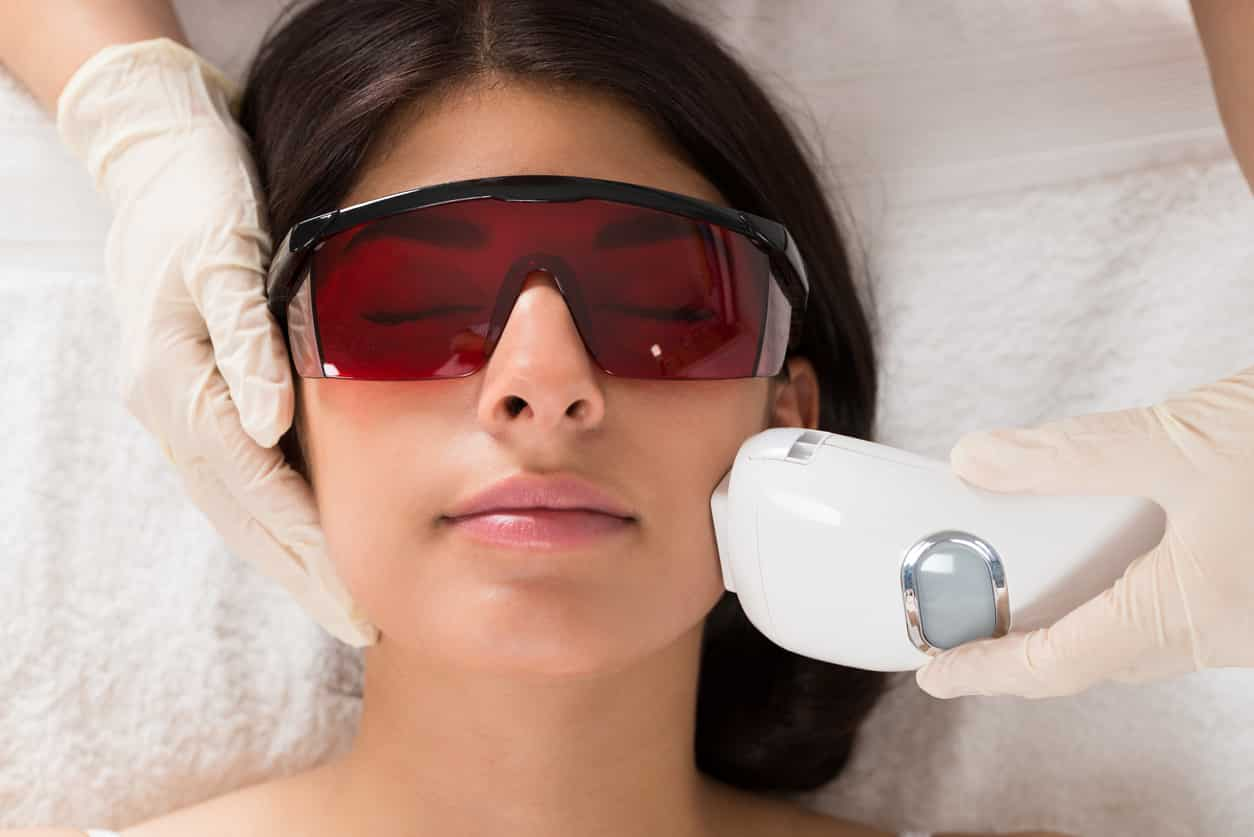Можно делать лазерную эпиляцию на лице