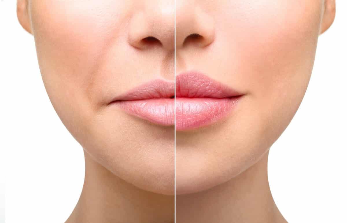 Увеличения губ гиалуроновой кислотой в домашних условиях