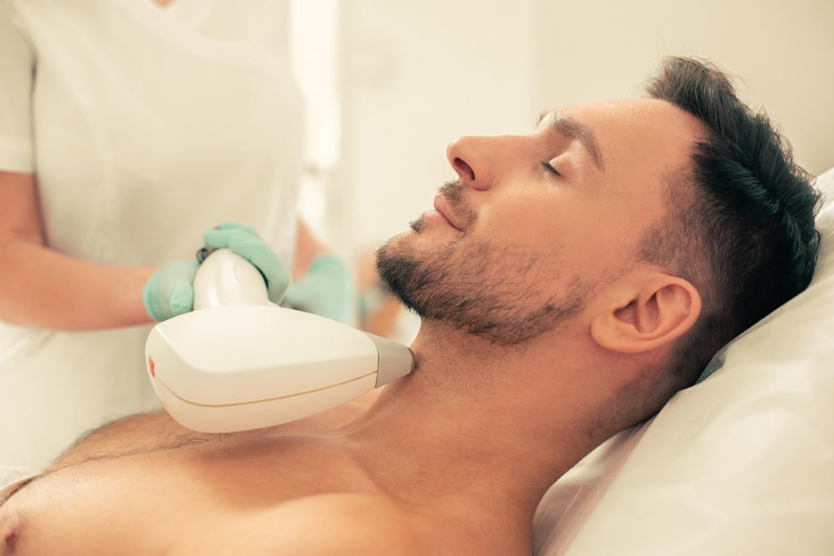Лазерная эпиляция лица для мужчин