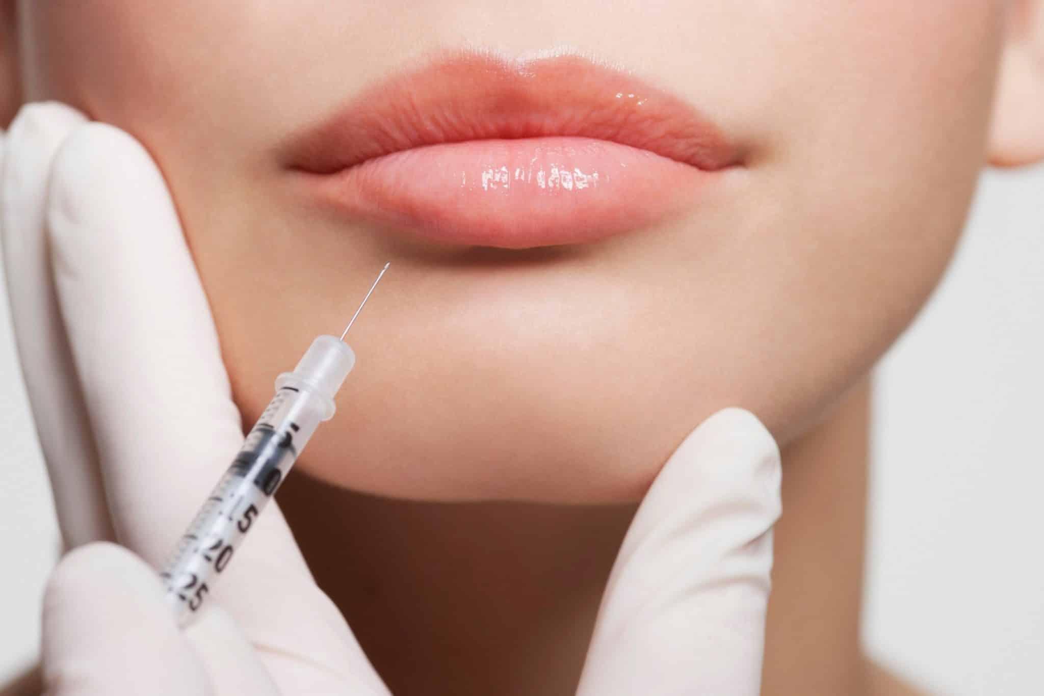 Эффект от контурной пластики губ помогает