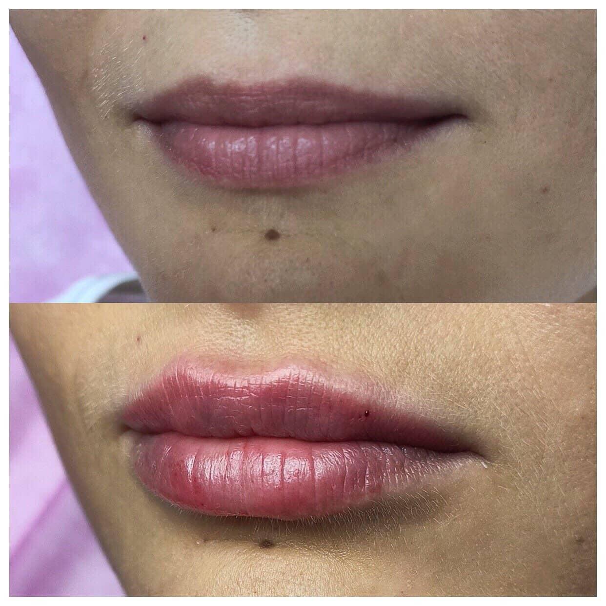 Липофилинга губ