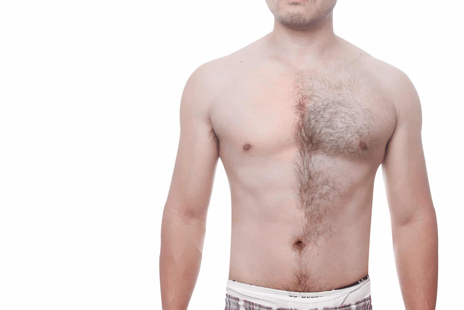 Мужская интимная лазерная эпиляция