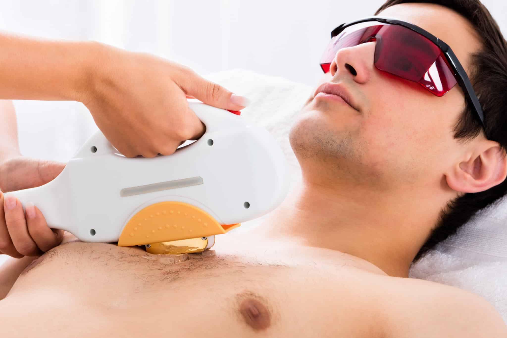 Лазерная депиляция для мужчин