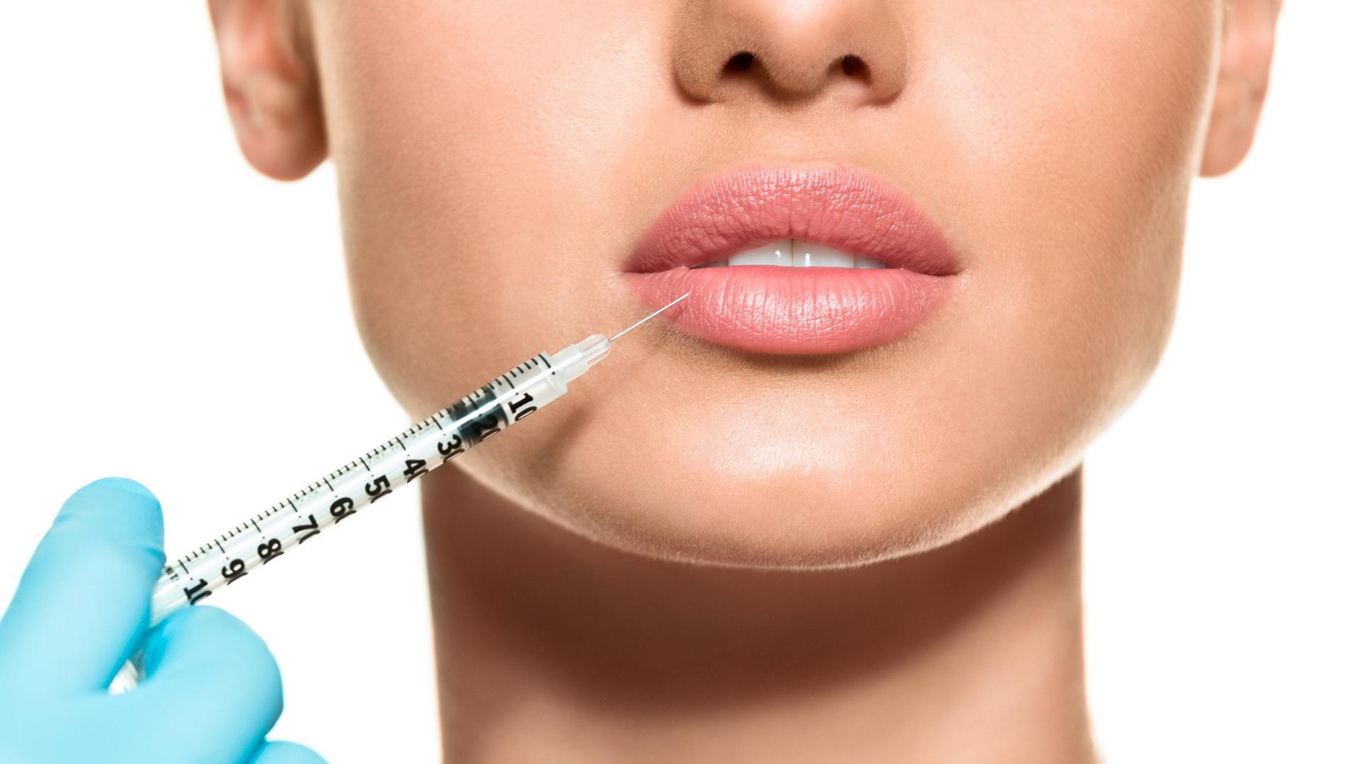 Контурная пластика губ филлерами помогает