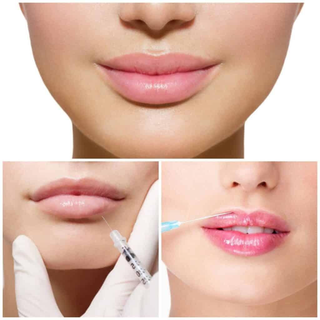 Увеличения губ дома