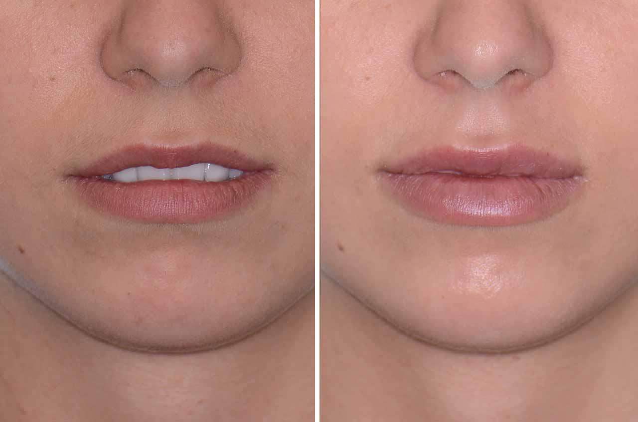 Контурная пластика губ гиалуроновой