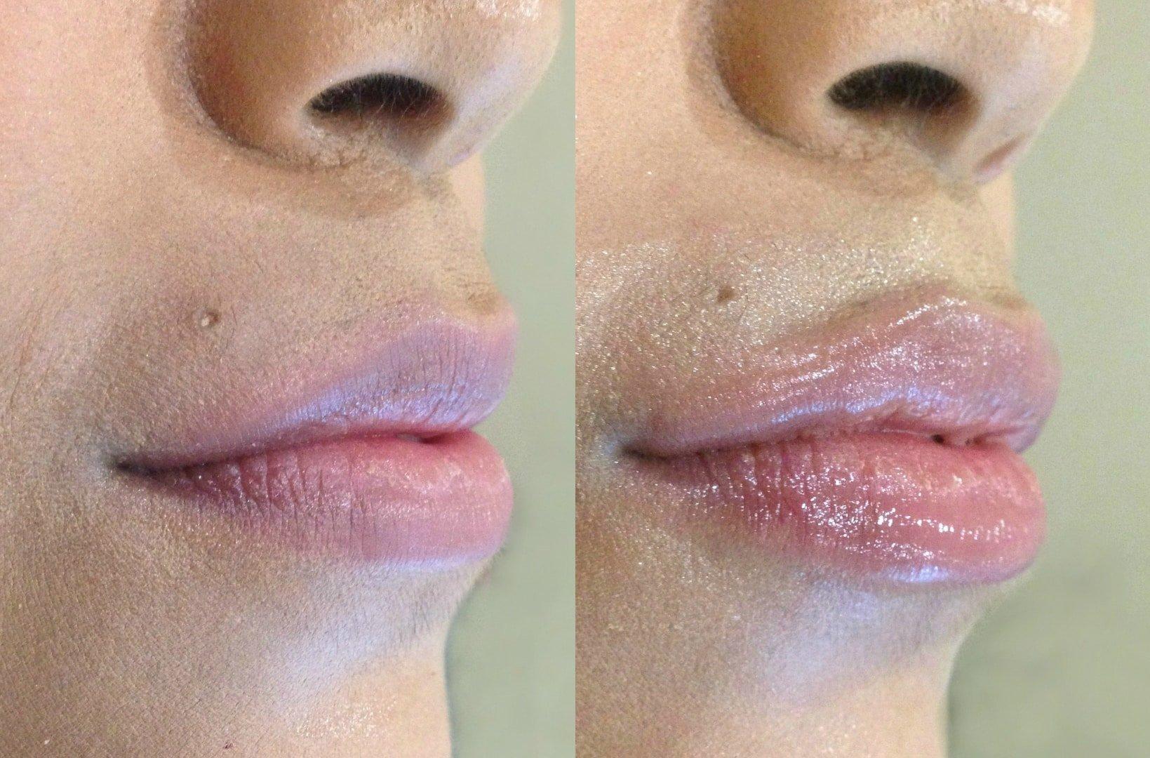 Увеличения губ в домашних условиях