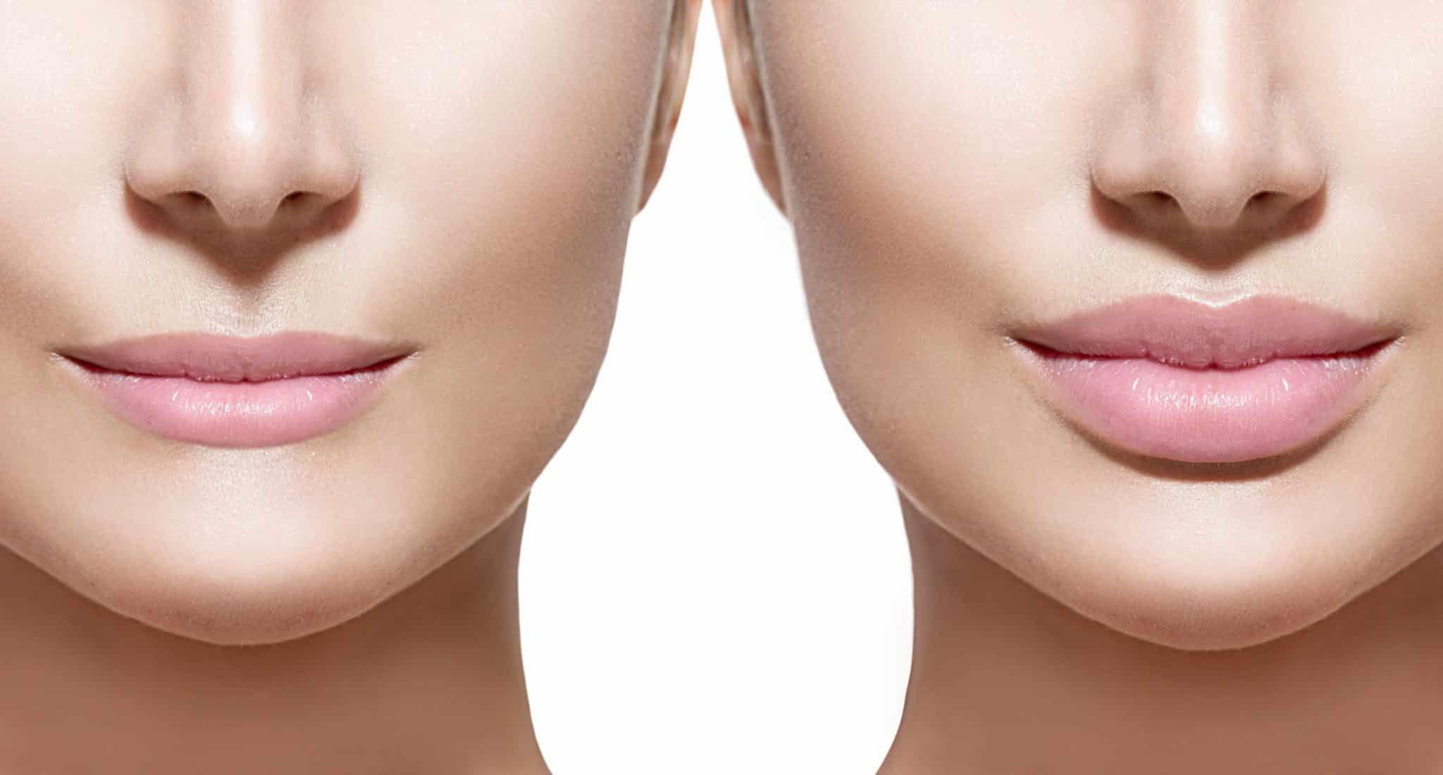 Подготовка к увеличению губ