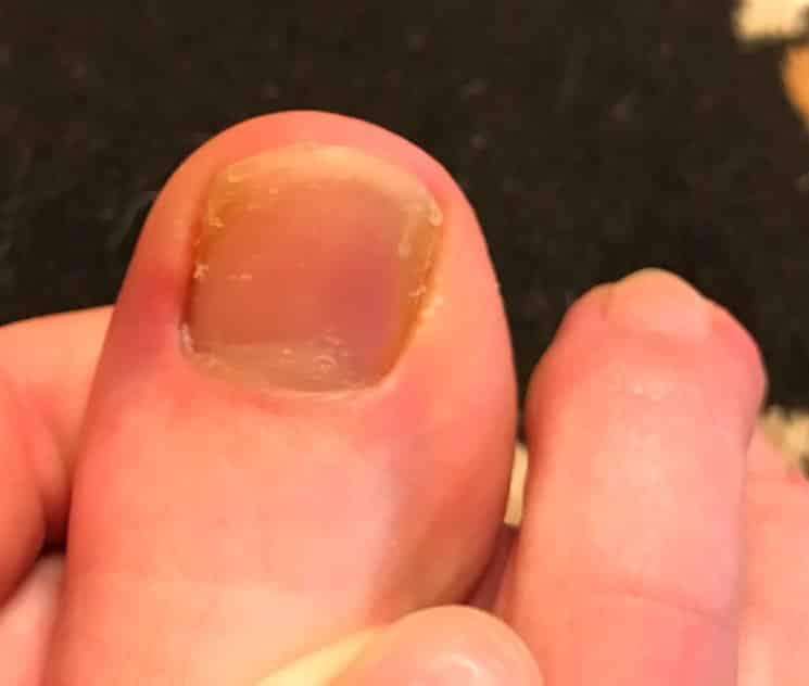 болит ноготь на большом пальце ноги