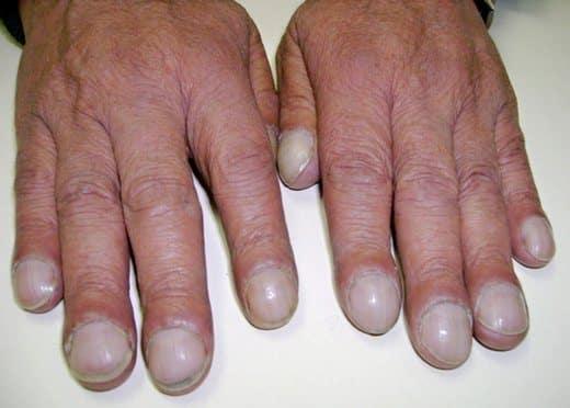 большие ногти на руках