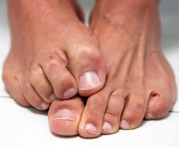 большие ногти на ногах