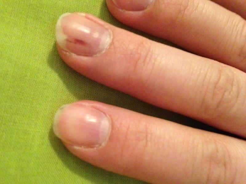 болят ногти на руках
