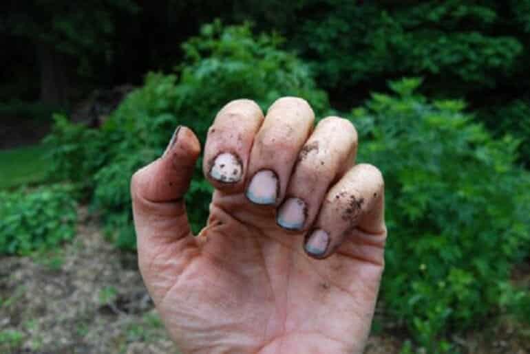 грязь под ногтем