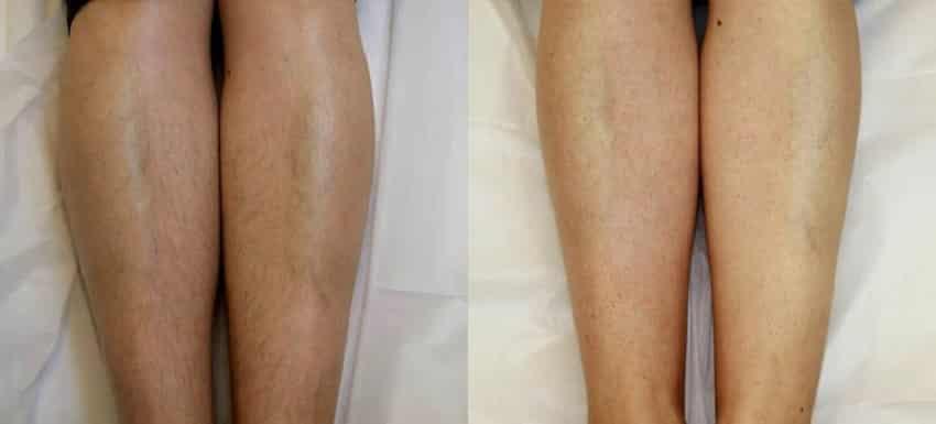 Фото лазерной эпиляции ног