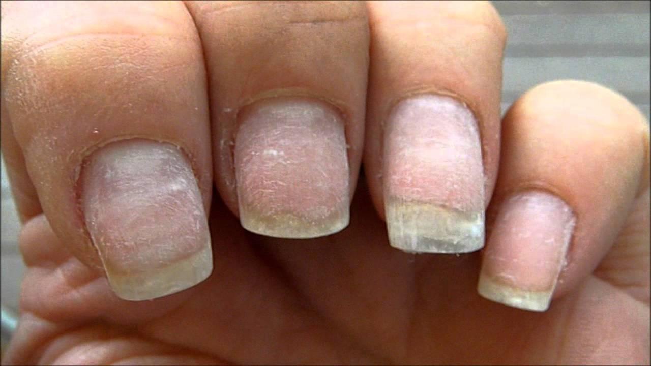ногти после шеллака