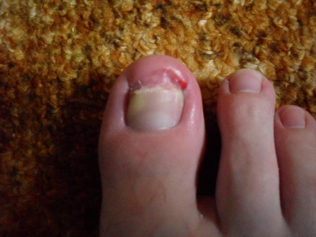 ноготь отвалился на ноге