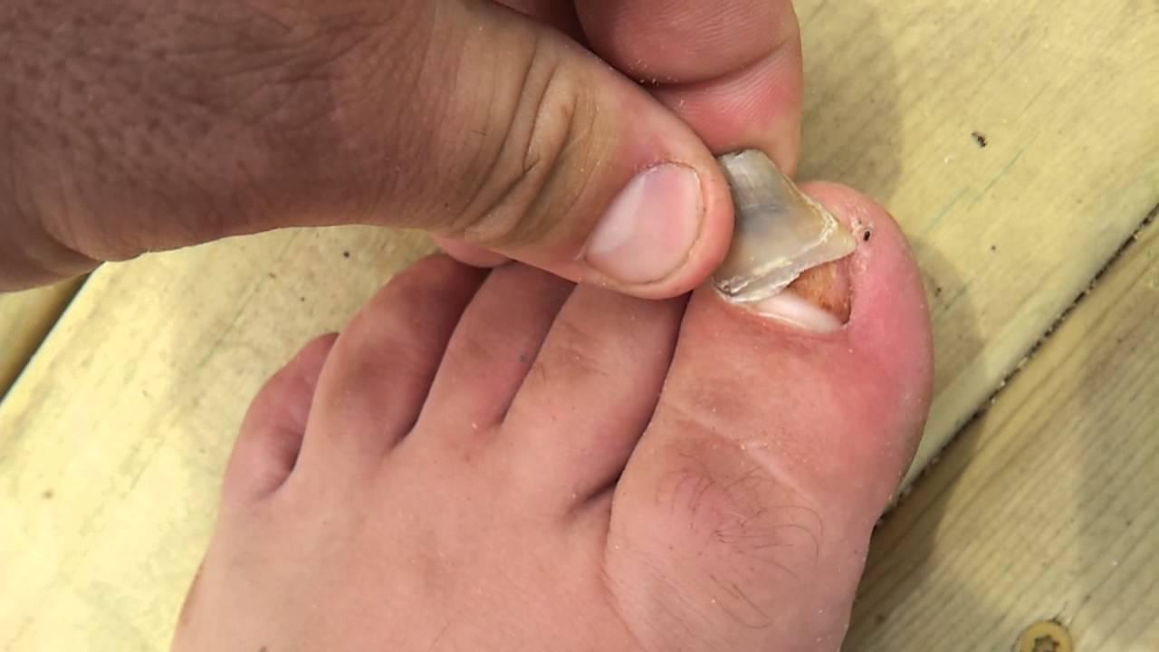 слезает ноготь на ноге