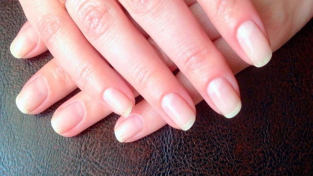 выпуклые ногти